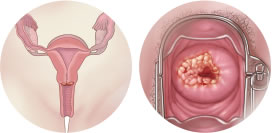 signs-symptoms-article-img-cervicalCancer